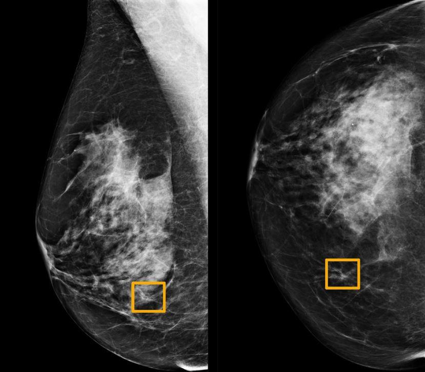 Штучний інтелект Google виявляє рак грудей точніше досвідченого лікаря